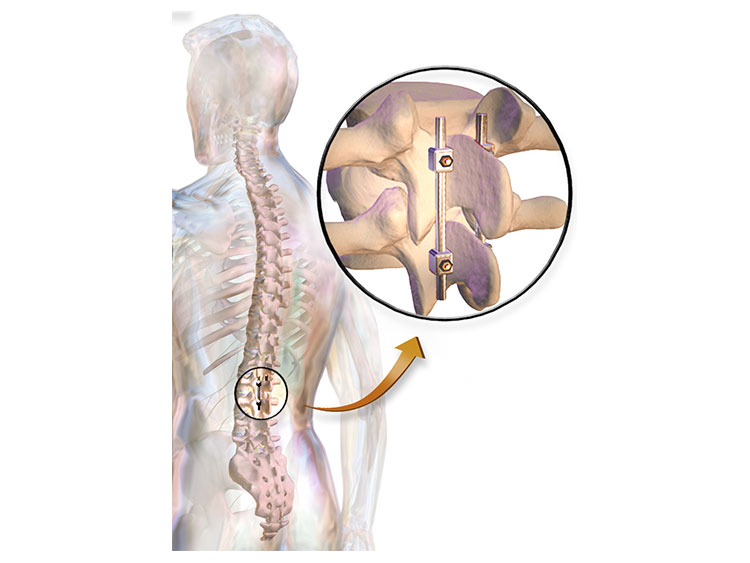 Spine Fusion Surgery in Plano TX