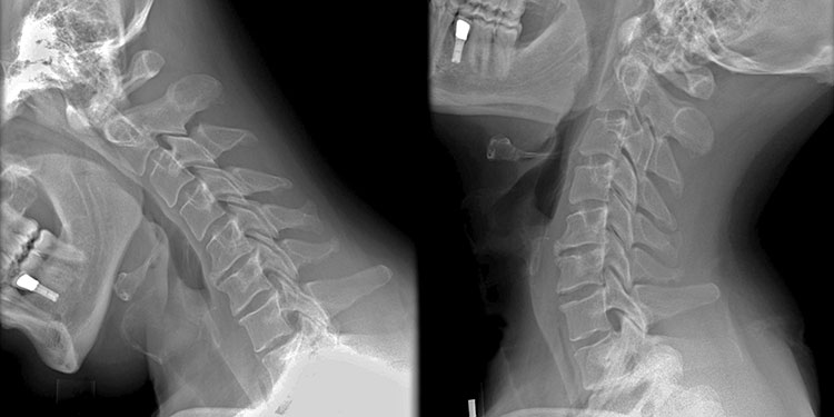 Cervical Spine Surgery in Plano TX