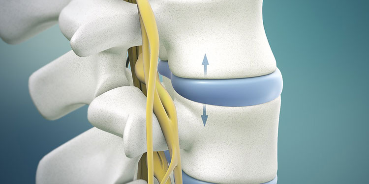 Should You Get 360 Spinal Fusion in Plano, TX?