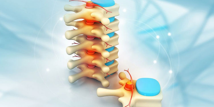 Cervical Disc Replacement Surgery – Back Pain Solutions